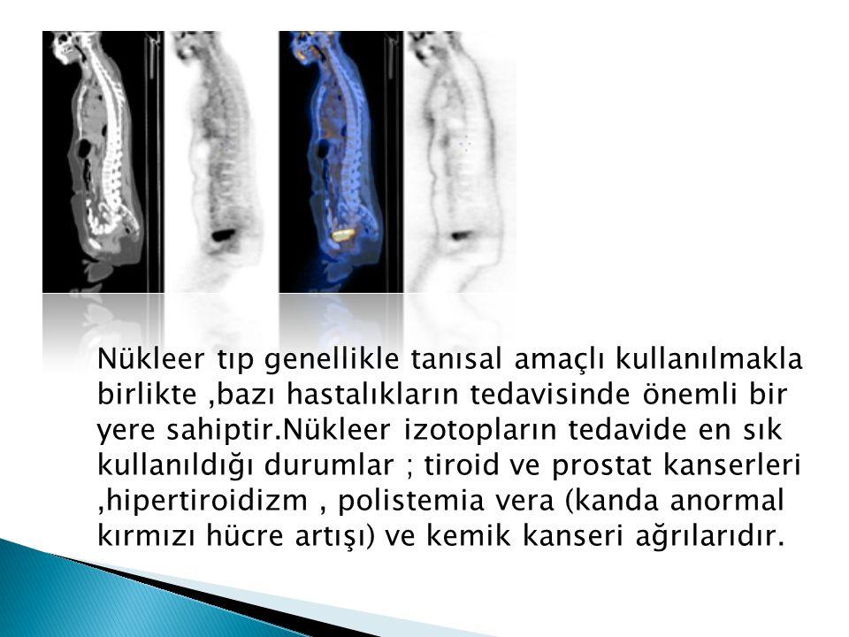 Nükleer tıp genellikle tanısal amaçlı kullanılmakla birlikte,bazı hastalıkların tedavisinde önemli bir yere sahiptir.Nükleer izotopların tedavide en sık kullanıldığı durumlar ; tiroid ve prostat kanserleri,hipertiroidizm, polistemia vera (kanda anormal kırmızı hücre artışı) ve kemik kanseri ağrılarıdır.