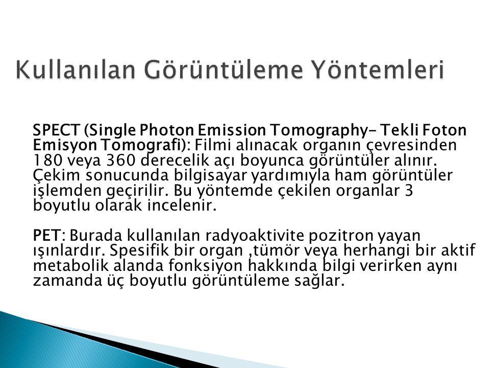 SPECT (Single Photon Emission Tomography- Tekli Foton Emisyon Tomografi): Filmi alınacak organın çevresinden 180 veya 360 derecelik açı boyunca görüntüler alınır.