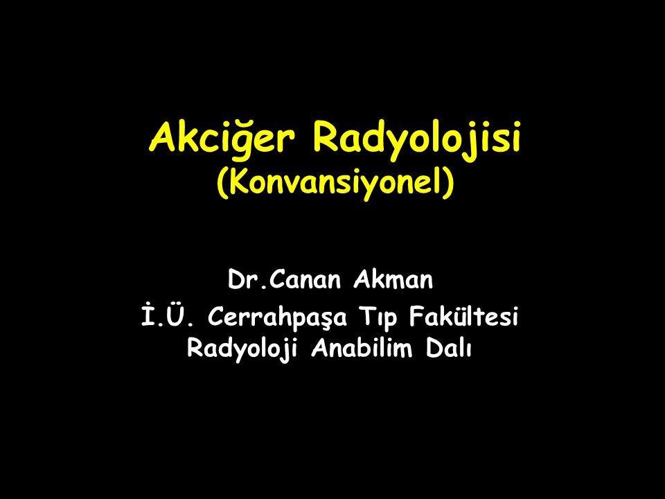 Akciğer Radyolojisi (Konvansiyonel) Dr.Canan Akman İ.Ü. Cerrahpaşa Tıp Fakültesi Radyoloji Anabilim Dalı