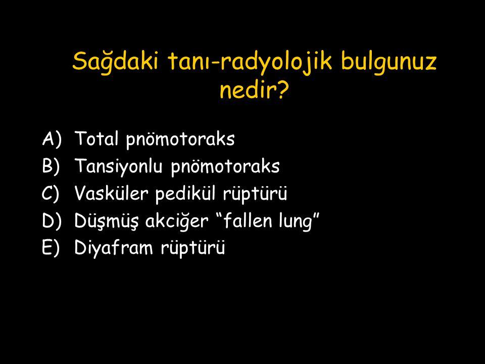 """Sağdaki tanı-radyolojik bulgunuz nedir? A)Total pnömotoraks B)Tansiyonlu pnömotoraks C)Vasküler pedikül rüptürü D)Düşmüş akciğer """"fallen lung"""" E)Diyaf"""