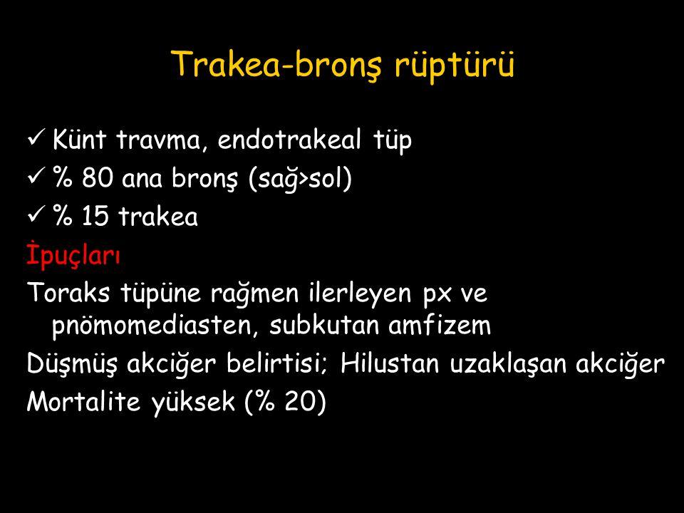 Trakea-bronş rüptürü Künt travma, endotrakeal tüp % 80 ana bronş (sağ>sol) % 15 trakea İpuçları Toraks tüpüne rağmen ilerleyen px ve pnömomediasten, s