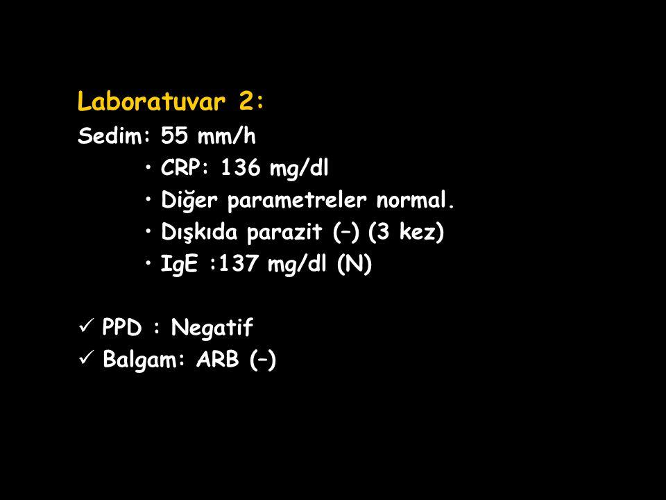 OLGU SUNUMU Laboratuvar 2: Sedim: 55 mm/h CRP: 136 mg/dl Diğer parametreler normal. Dışkıda parazit (–) (3 kez) IgE :137 mg/dl (N) PPD : Negatif Balga