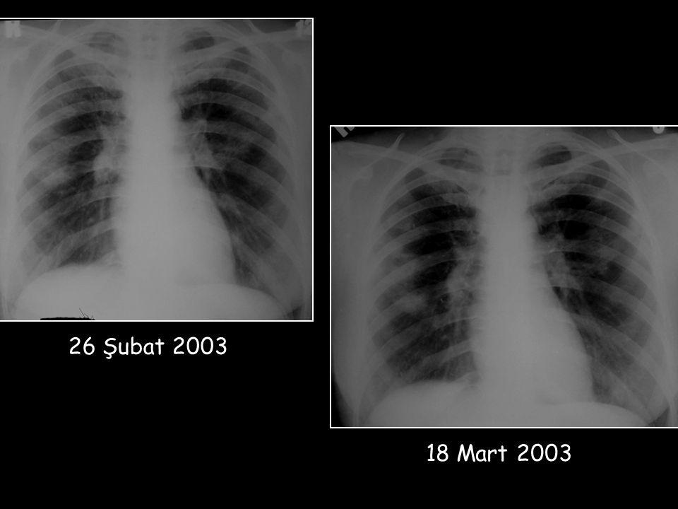 26/2//2003 26 Şubat 2003 18 Mart 2003