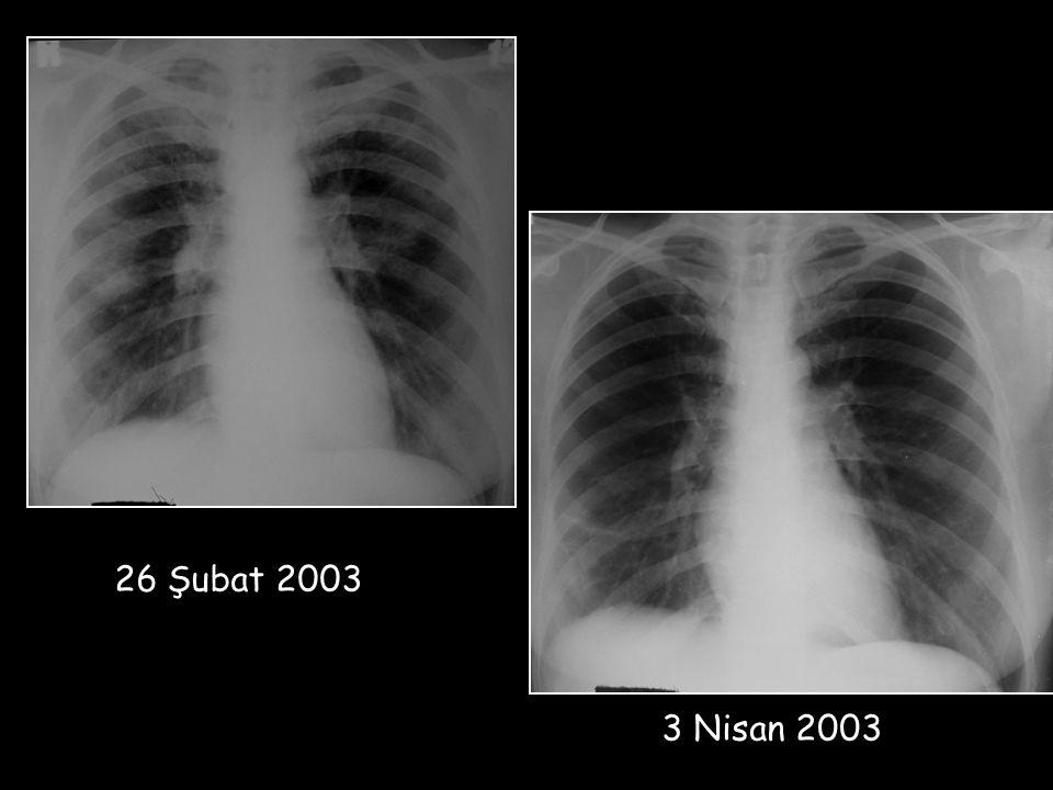 3 Nisan 2003 26 Şubat 2003