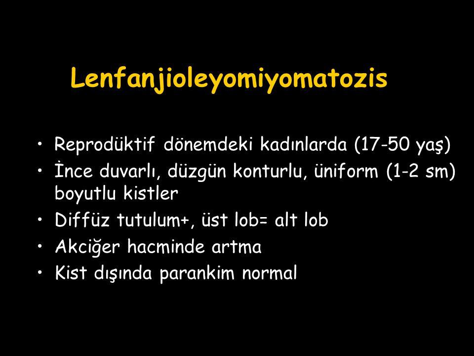 Lenfanjioleyomiyomatozis Reprodüktif dönemdeki kadınlarda (17-50 yaş) İnce duvarlı, düzgün konturlu, üniform (1-2 sm) boyutlu kistler Diffüz tutulum+,
