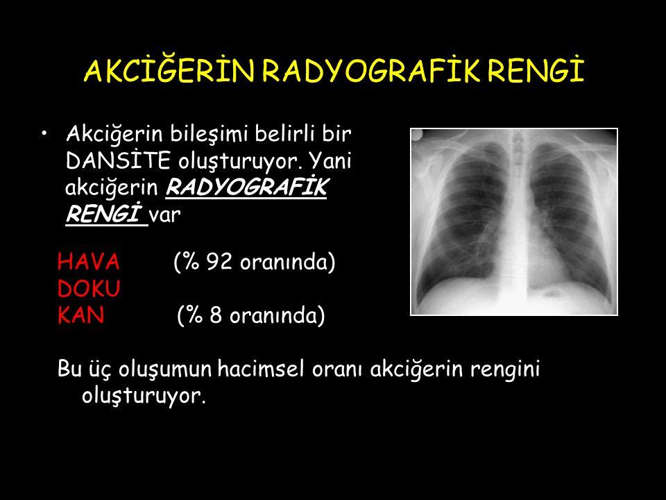 AKCİĞERİN RADYOGRAFİK RENGİ Akciğerin bileşimi belirli bir DANSİTE oluşturuyor. Yani akciğerin RADYOGRAFİK RENGİ var HAVA (% 92 oranında) DOKU KAN (%
