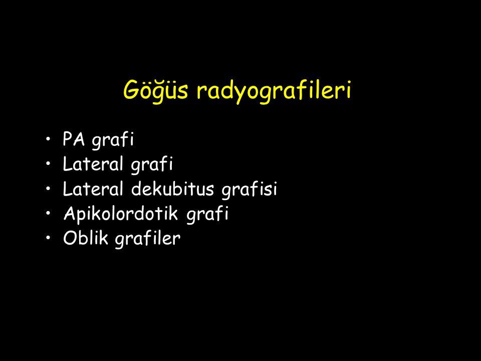 Göğüs radyografileri PA grafi Lateral grafi Lateral dekubitus grafisi Apikolordotik grafi Oblik grafiler