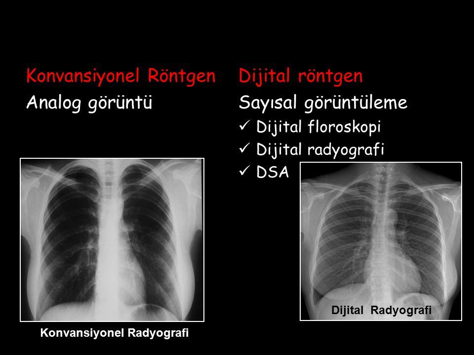 Konvansiyonel Röntgen Analog görüntü Dijital röntgen Sayısal görüntüleme Dijital floroskopi Dijital radyografi DSA Dijital Radyografi Konvansiyonel Ra