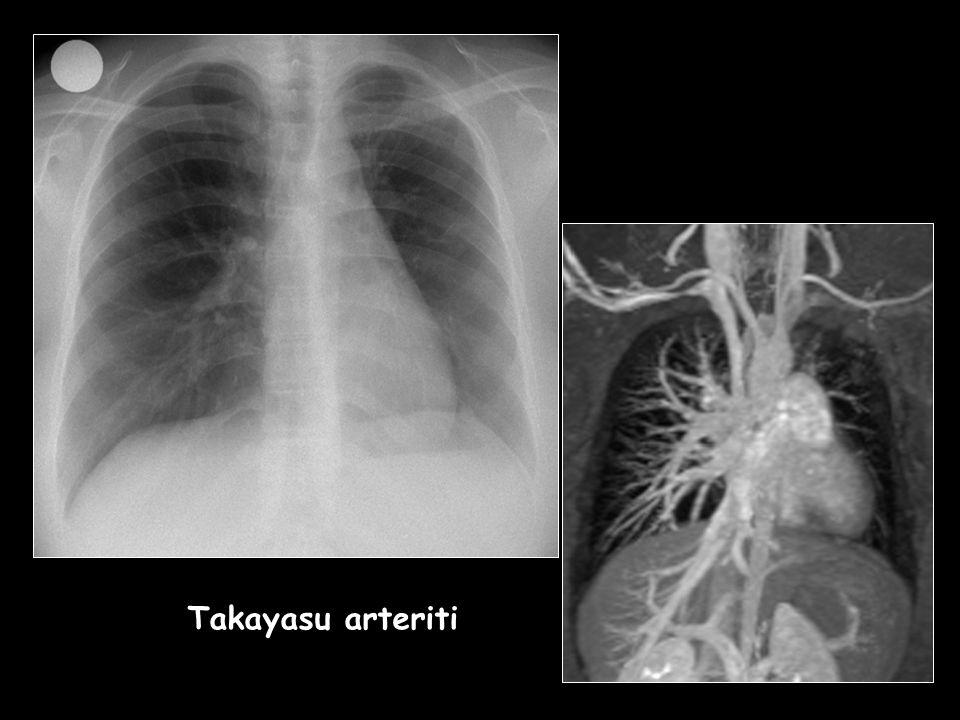 Takayasu arteriti