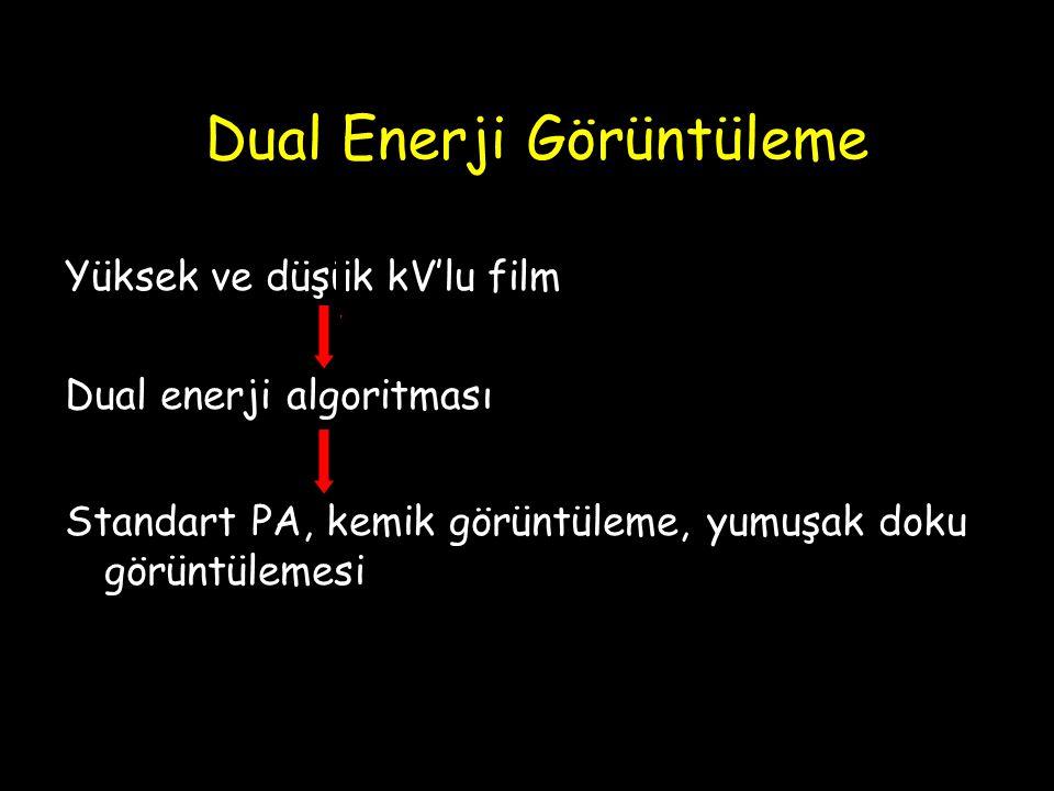 Dual Enerji Görüntüleme Yüksek ve düşük kV'lu film Dual enerji algoritması Standart PA, kemik görüntüleme, yumuşak doku görüntülemesi