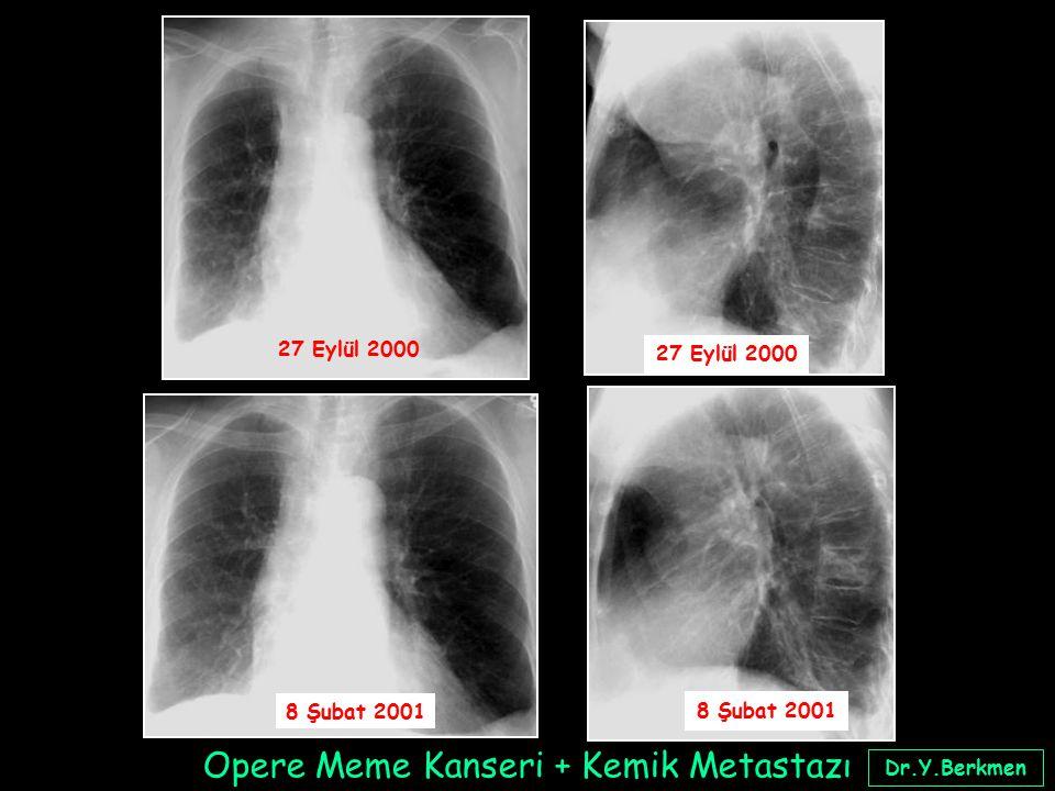 27 Eylül 2000 8 Şubat 2001 Dr.Y.Berkmen Opere Meme Kanseri + Kemik Metastazı
