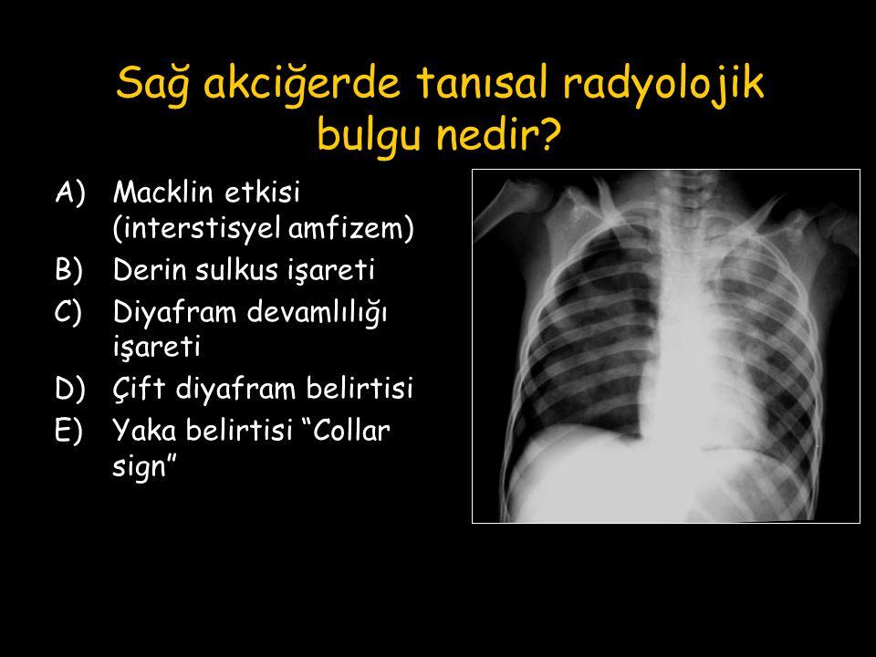 Sağ akciğerde tanısal radyolojik bulgu nedir? A)Macklin etkisi (interstisyel amfizem) B)Derin sulkus işareti C)Diyafram devamlılığı işareti D)Çift diy