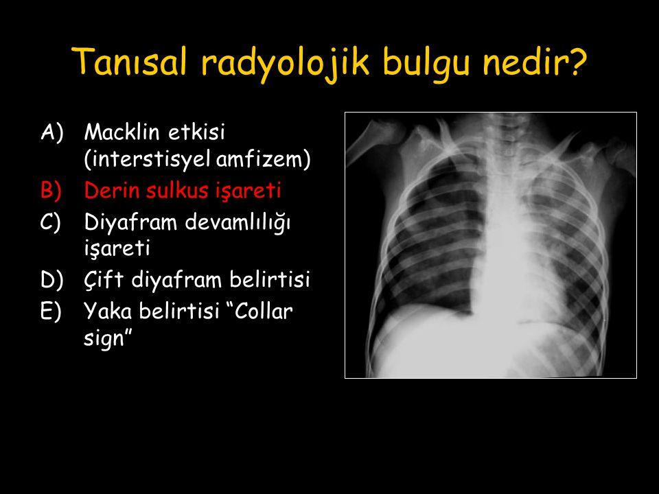Tanısal radyolojik bulgu nedir? A)Macklin etkisi (interstisyel amfizem) B)Derin sulkus işareti C)Diyafram devamlılığı işareti D)Çift diyafram belirtis