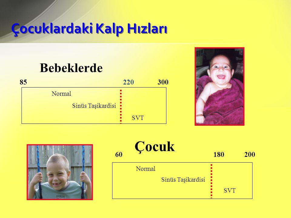 Çocuklardaki Kalp Hızları 85 220 300 Normal SVT Normal 60 180 200 SVT Çocuk Bebeklerde Sinüs Taşikardisi