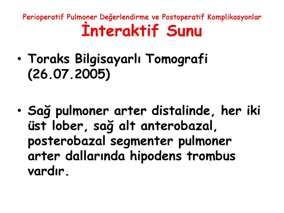 Perioperatif Pulmoner Değerlendirme ve Postoperatif Komplikasyonlar İnteraktif Sunu Toraks Bilgisayarlı Tomografi (26.07.2005) Sağ pulmoner arter dist