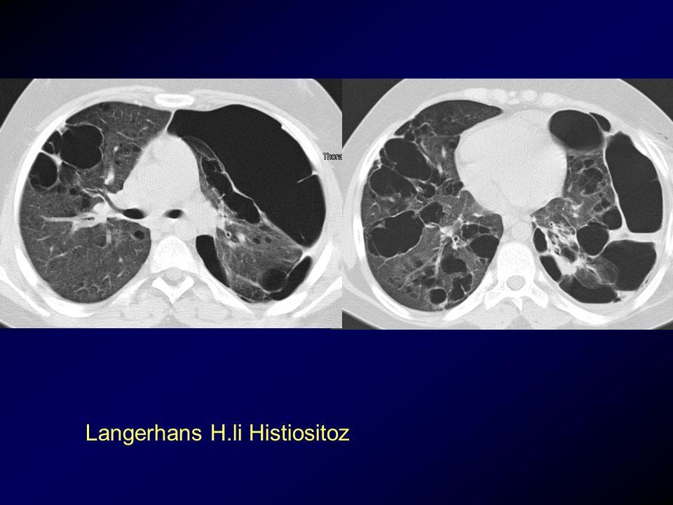 Langerhans H.li Histiositoz