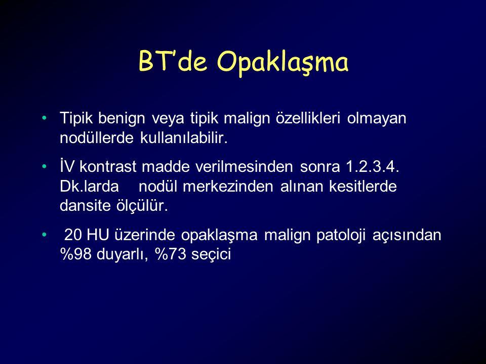 BT'de Opaklaşma Tipik benign veya tipik malign özellikleri olmayan nodüllerde kullanılabilir. İV kontrast madde verilmesinden sonra 1.2.3.4. Dk.larda