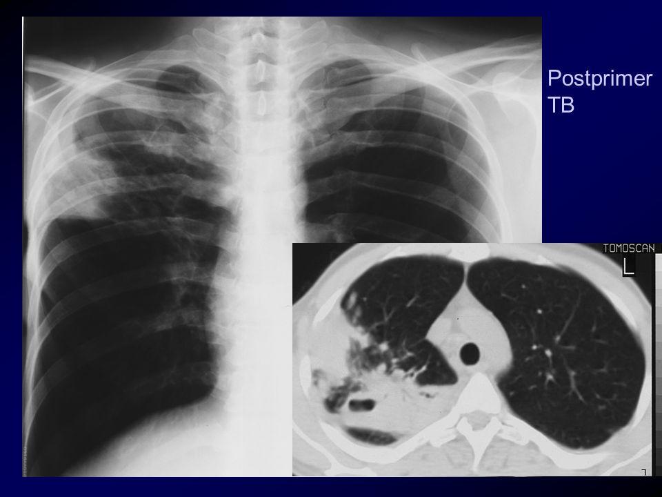 Postprimer TB