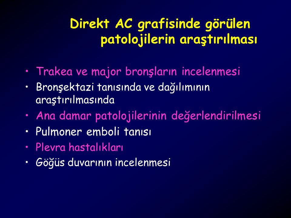 Ektopik Paratiroid Adenomu