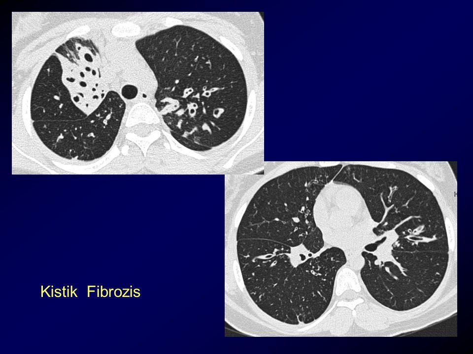 Kistik Fibrozis