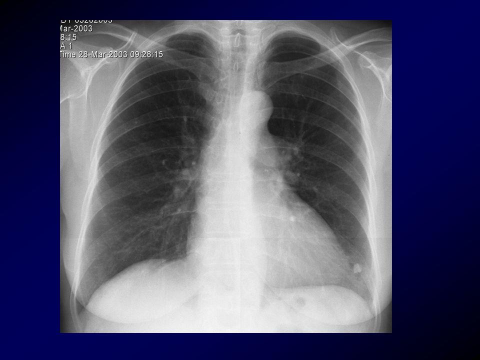 YÇBT endikasyonları Aktif hastalık: AC grafisi normal veya normale yakın olup semptomatik olan hastaların incelenmesi akut-kronik dispne, göğüs ağrısı, nedeni bilinmeyen ateş, anormal PFT, hemoptizi, kemik iliği veya organ nakli sonrası veya AIDS'li hastalarda enfeksiyon süphesi varsa