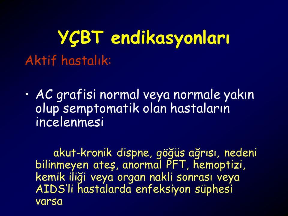 YÇBT endikasyonları Aktif hastalık: AC grafisi normal veya normale yakın olup semptomatik olan hastaların incelenmesi akut-kronik dispne, göğüs ağrısı