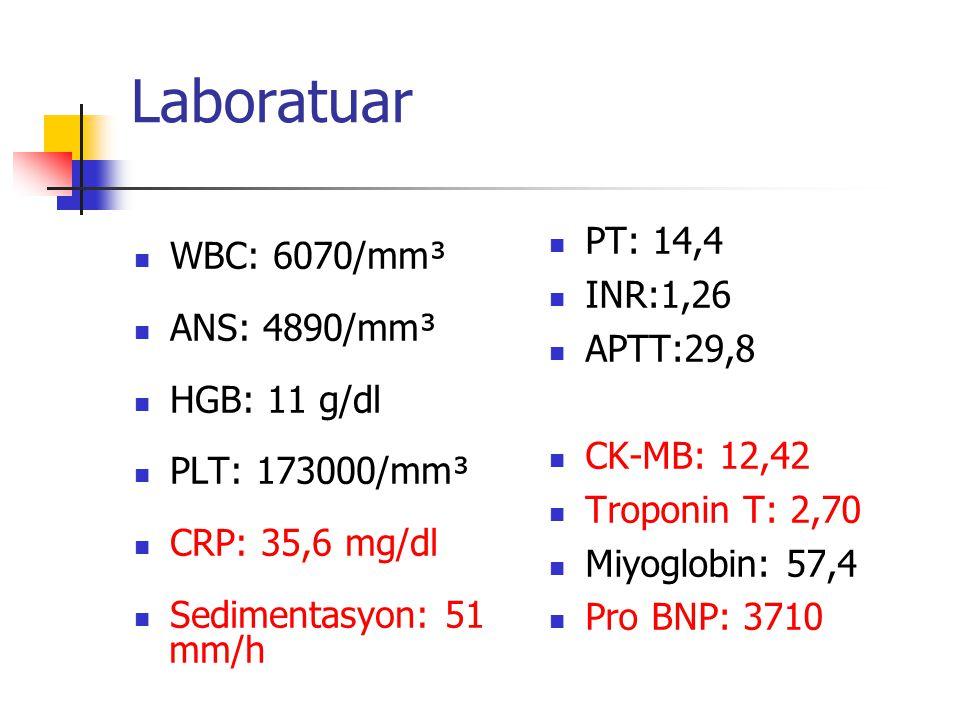 Laboratuar WBC: 6070/mm³ ANS: 4890/mm³ HGB: 11 g/dl PLT: 173000/mm³ CRP: 35,6 mg/dl Sedimentasyon: 51 mm/h PT: 14,4 INR:1,26 APTT:29,8 CK-MB: 12,42 Tr