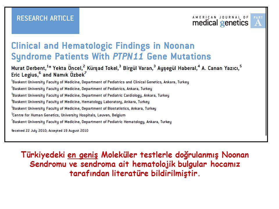 Türkiyedeki en geniş Moleküler testlerle doğrulanmış Noonan Sendromu ve sendroma ait hematolojik bulgular hocamız tarafından literatüre bildirilmiştir