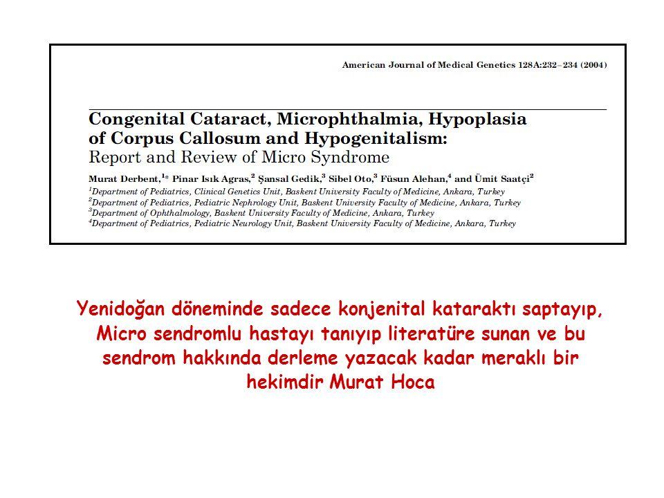 Yenidoğan döneminde sadece konjenital kataraktı saptayıp, Micro sendromlu hastayı tanıyıp literatüre sunan ve bu sendrom hakkında derleme yazacak kada