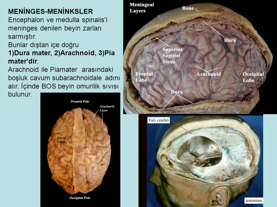 MENİNGES-MENİNKSLER Encephalon ve medulla spinalis i meninges denilen beyin zarları sarmıştır.