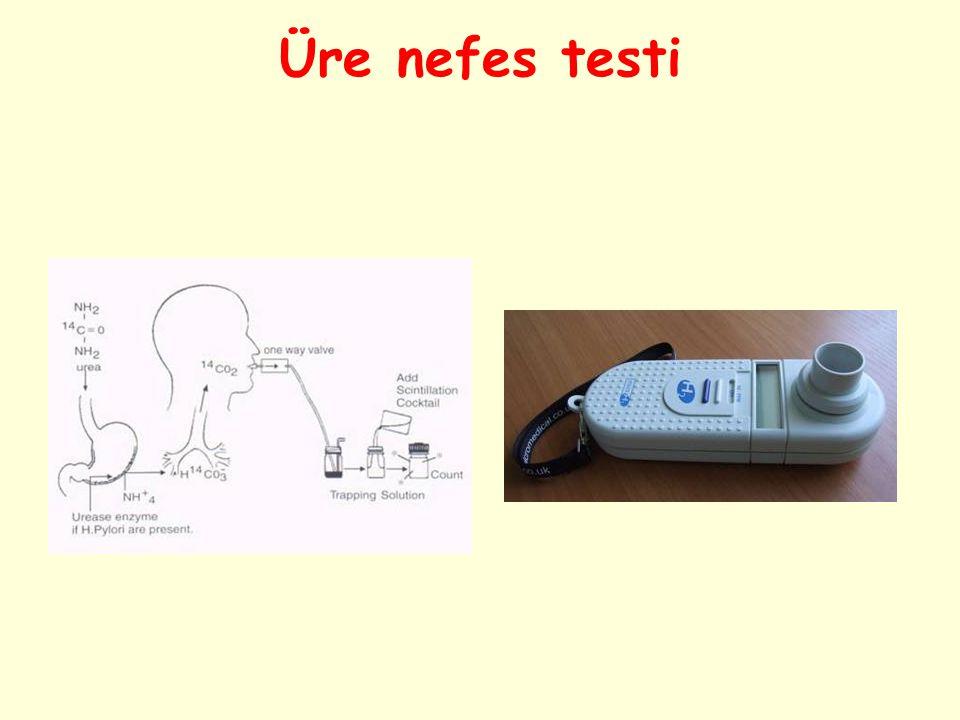 Üre nefes testi