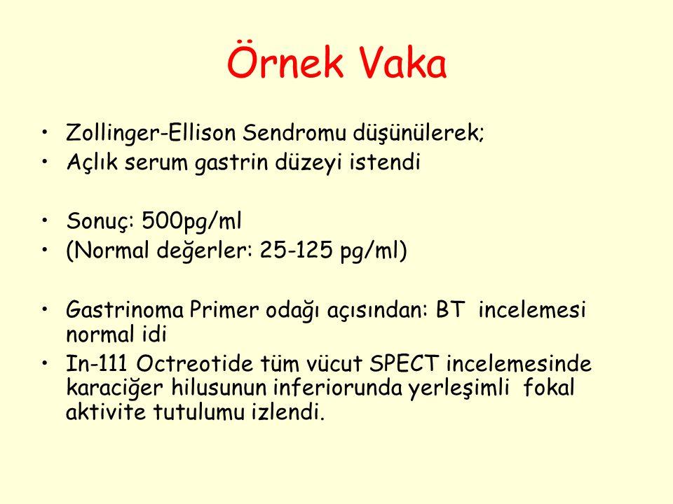 Örnek Vaka Zollinger-Ellison Sendromu düşünülerek; Açlık serum gastrin düzeyi istendi Sonuç: 500pg/ml (Normal değerler: 25-125 pg/ml) Gastrinoma Prime