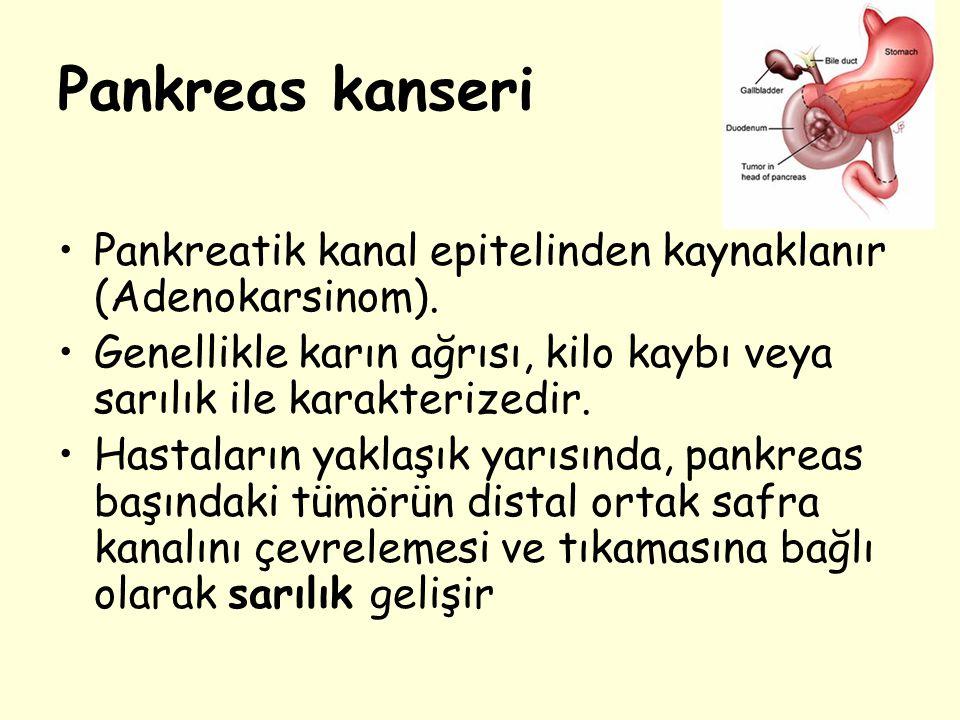 Pankreas kanseri Pankreatik kanal epitelinden kaynaklanır (Adenokarsinom). Genellikle karın ağrısı, kilo kaybı veya sarılık ile karakterizedir. Hastal