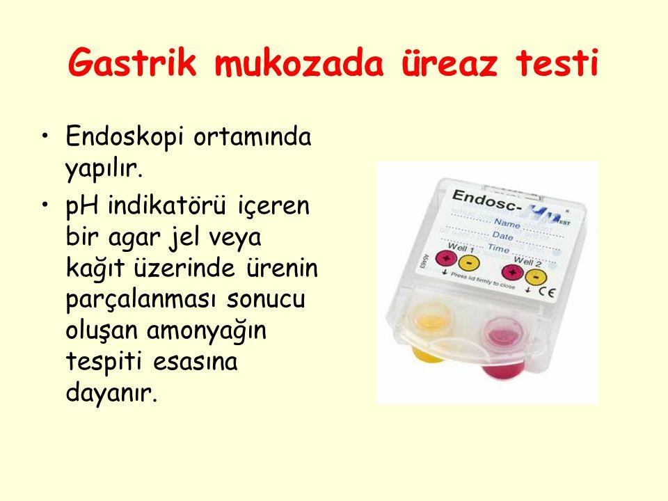 Gastrik mukozada üreaz testi Endoskopi ortamında yapılır. pH indikatörü içeren bir agar jel veya kağıt üzerinde ürenin parçalanması sonucu oluşan amon