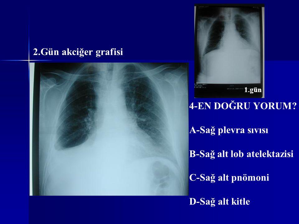 2.Gün akciğer grafisi 4-EN DOĞRU YORUM? A-Sağ plevra sıvısı B-Sağ alt lob atelektazisi C-Sağ alt pnömoni D-Sağ alt kitle 1.gün