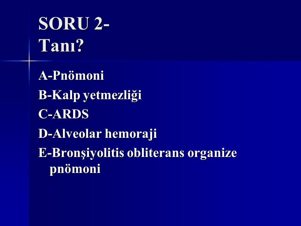 SORU 2- Tanı? A-Pnömoni B-Kalp yetmezliği C-ARDS D-Alveolar hemoraji E-Bronşiyolitis obliterans organize pnömoni