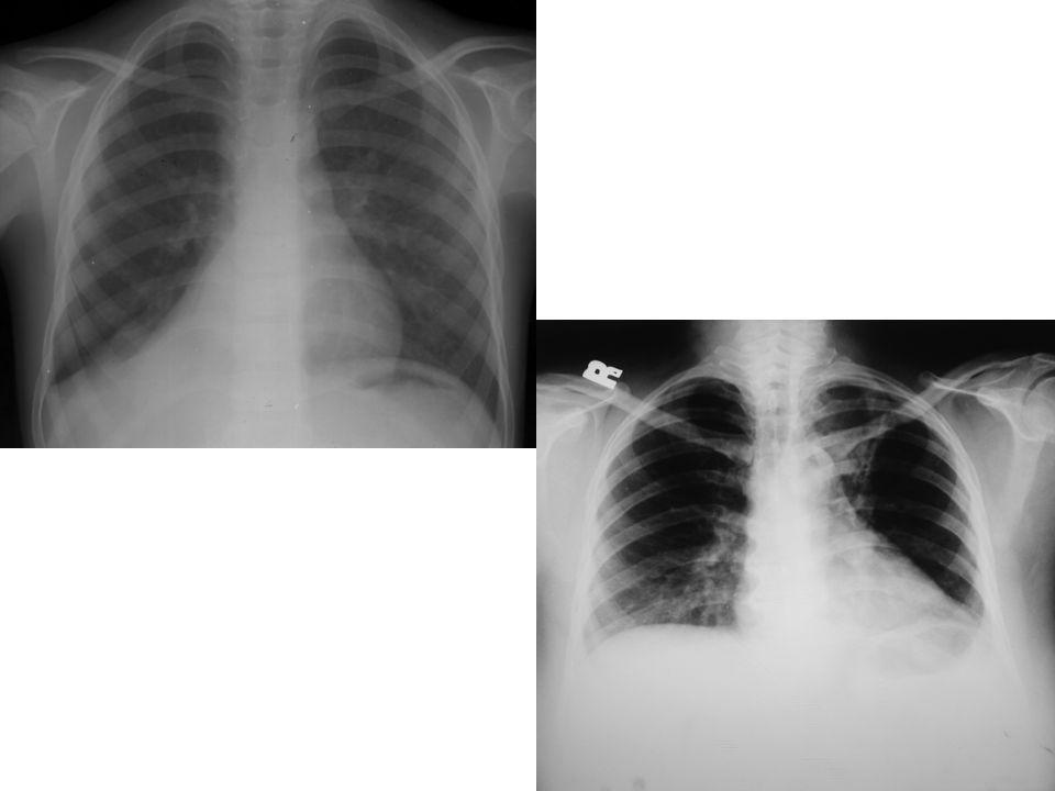 66 Toraks BT BT akciğer grafisi normal, ancak klinik olarak şüpheli TB olgularında kullanılır