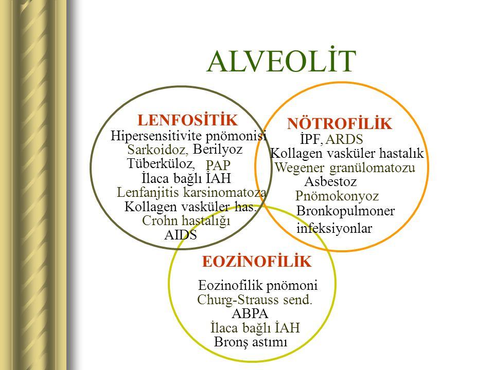 ALVEOLİT EOZİNOFİLİK Eozinofilik pnömoni Churg-Strauss send. ABPA İlaca bağlı İAH Bronş astımı LENFOSİTİK Hipersensitivite pnömonisi Sarkoidoz, Berily