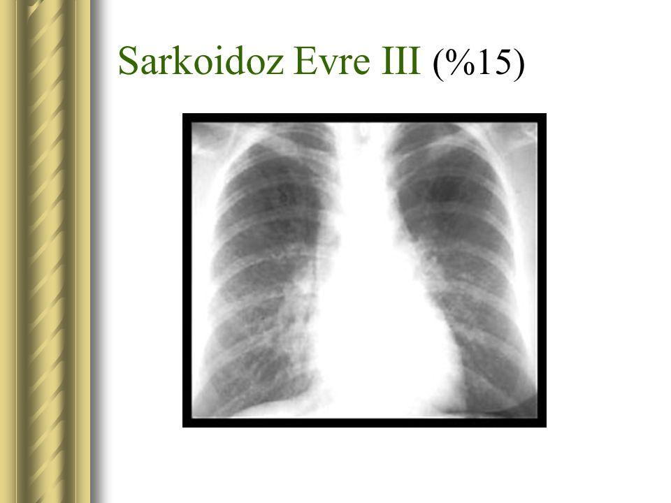 Sarkoidoz Evre III (%15)