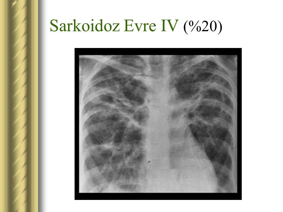 Sarkoidoz Evre IV (%20)