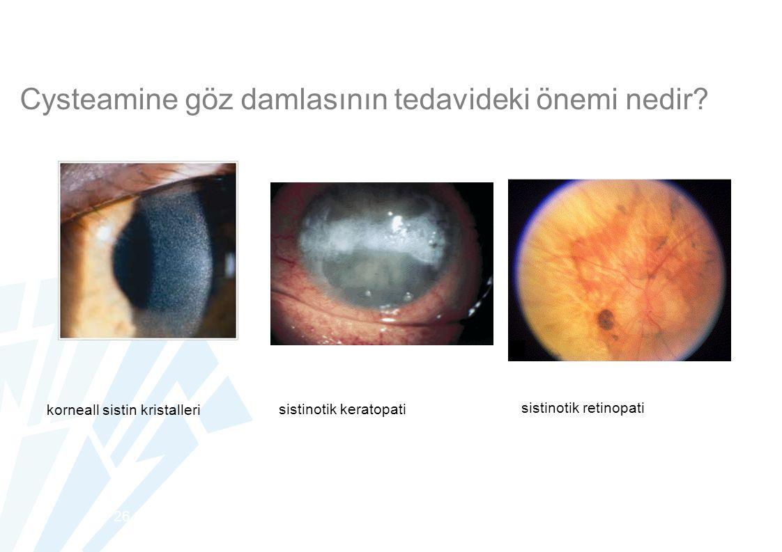 26 korneall sistin kristalleri sistinotik keratopati sistinotik retinopati Cysteamine göz damlasının tedavideki önemi nedir?
