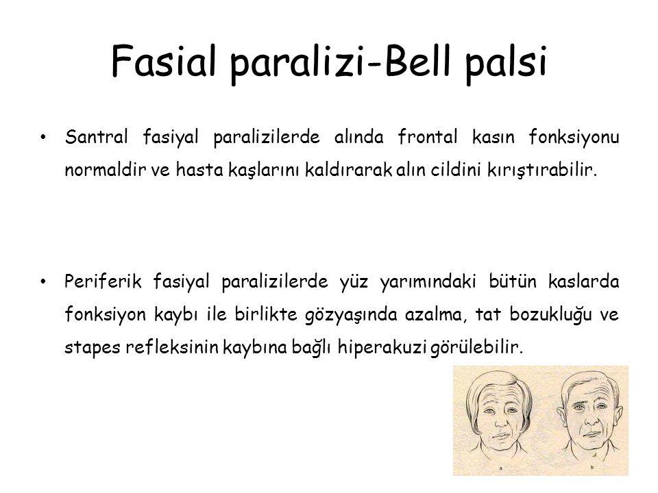 Fasial paralizi-Bell palsi Santral fasiyal paralizilerde alında frontal kasın fonksiyonu normaldir ve hasta kaşlarını kaldırarak alın cildini kırıştırabilir.