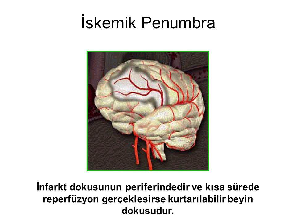 İskemik Penumbra İnfarkt dokusunun periferindedir ve kısa sürede reperfüzyon gerçeklesirse kurtarılabilir beyin dokusudur.