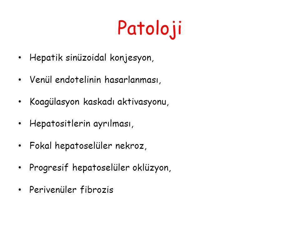 Patoloji Hepatik sinüzoidal konjesyon, Venül endotelinin hasarlanması, Koagülasyon kaskadı aktivasyonu, Hepatositlerin ayrılması, Fokal hepatoselüler