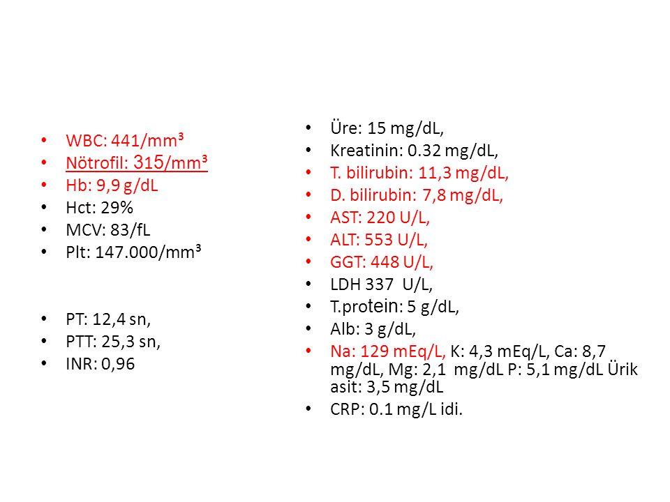WBC: 441/mm³ Nötrofil: 3 1 5 /mm³ Hb: 9,9 g/dL Hct: 29% MCV: 83/fL Plt: 147.000/mm³ PT: 12,4 sn, PTT: 25,3 sn, INR: 0,96 Üre: 15 mg/dL, Kreatinin: 0.3