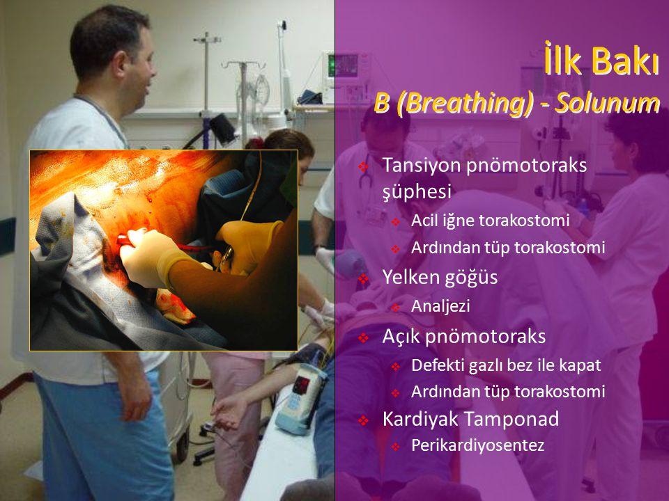 İlk Bakı B (Breathing) - Solunum  Tansiyon pnömotoraks şüphesi  Acil iğne torakostomi  Ardından tüp torakostomi  Yelken göğüs  Analjezi  Açık pn