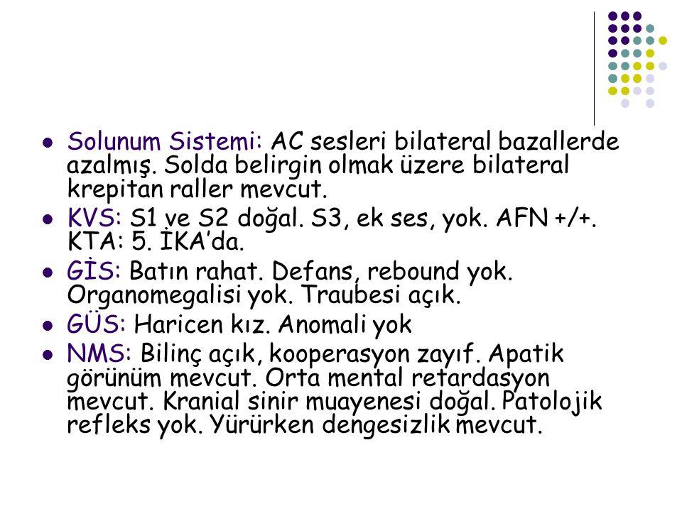 Solunum Sistemi: AC sesleri bilateral bazallerde azalmış.