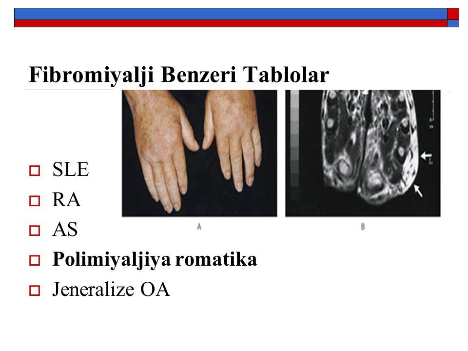 Fibromiyalji Benzeri Tablolar  SLE  RA  AS  Polimiyaljiya romatika  Jeneralize OA
