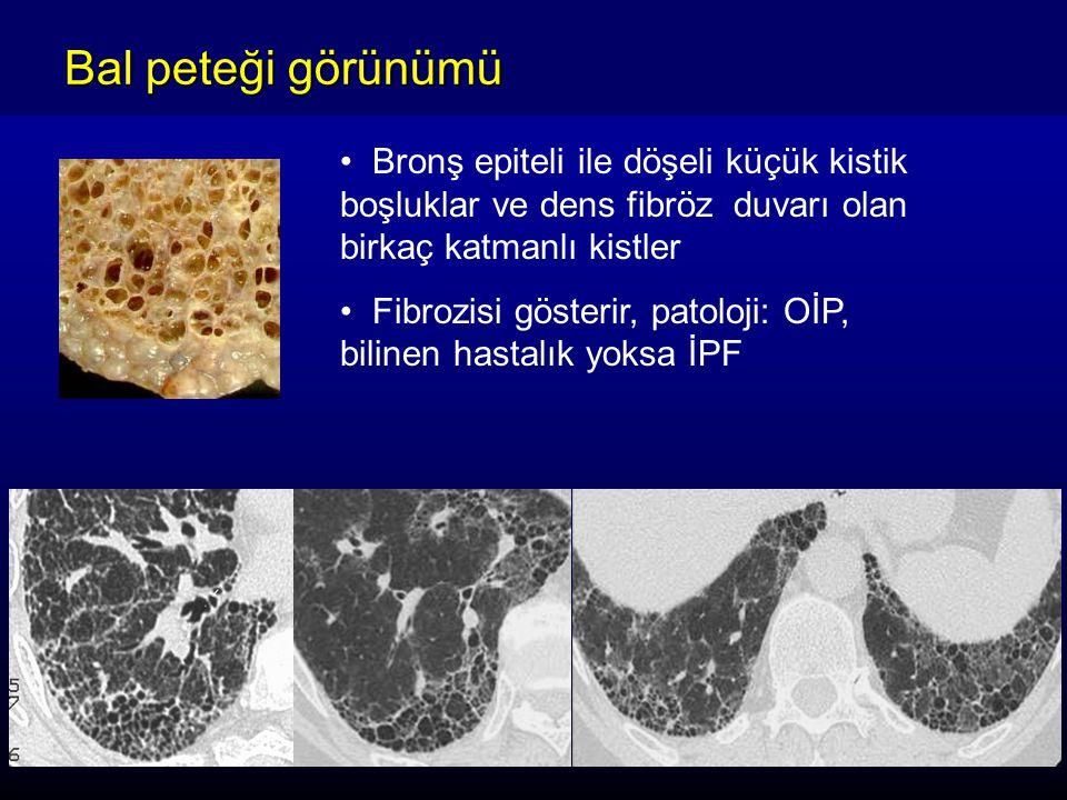 Bal peteği görünümü Bronş epiteli ile döşeli küçük kistik boşluklar ve dens fibröz duvarı olan birkaç katmanlı kistler Fibrozisi gösterir, patoloji: OİP, bilinen hastalık yoksa İPF