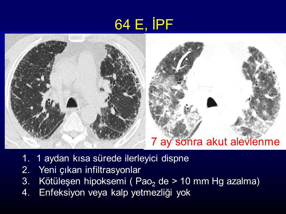 64 E, İPF 7 ay sonra akut alevlenme 1.1 aydan kısa sürede ilerleyici dispne 2. Yeni çıkan infiltrasyonlar 3. Kötüleşen hipoksemi ( Pao 2 de > 10 mm Hg